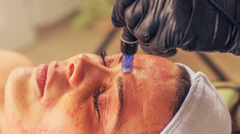 dermapen-behandling-stavanger-soneterapi